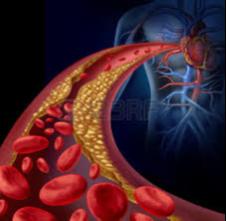 hhh-Atherosclerosis